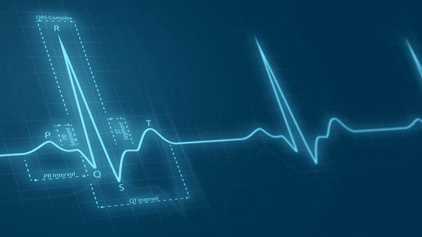 هوش مصنوعی پیشبینی حمله قلبی